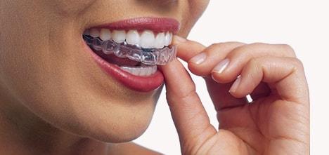 マウスピース型矯正治療法(インビザライン矯正システム)では簡単に歯から取り外すことができる