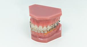 歯並びの健康を保つメンテナンス
