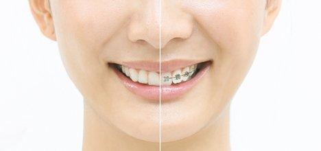 世界一の歯列矯正テクノロジー
