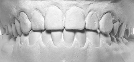 「歯の後戻り」が起こる理由?