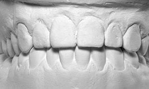 歯型採取は一回